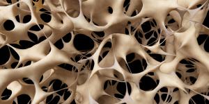 osteoporoza pregled